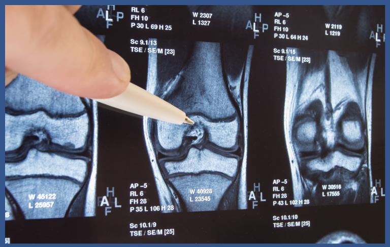 Course Image Corso teorico pratico in chirurgia robotica: protesi totale di ginocchio